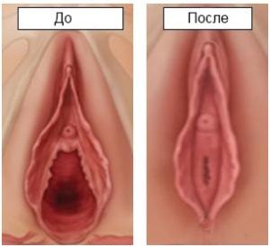 Vaginal-Narrower-Result